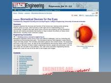 Biomedical Devices for the Eyes Lesson Plan