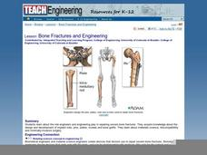 Bone Fractures and Engineering Lesson Plan