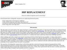 Hip Replacement Lesson Plan
