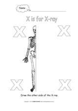 Letter X: X-ray Worksheet