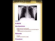 X-rays Lesson Plan