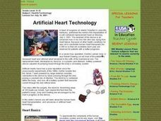 Artificial Heart Technology Lesson Plan
