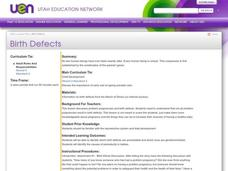 Birth Defects Lesson Plan