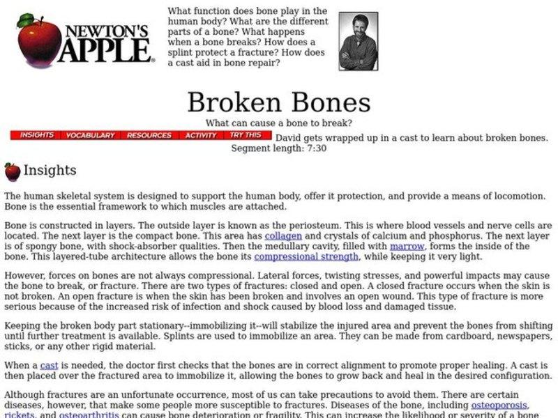 Broken Bones Lesson Plan for 3rd - 8th Grade | Lesson Planet