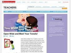 Open Wide and Meet Your Tonsils Lesson Plan