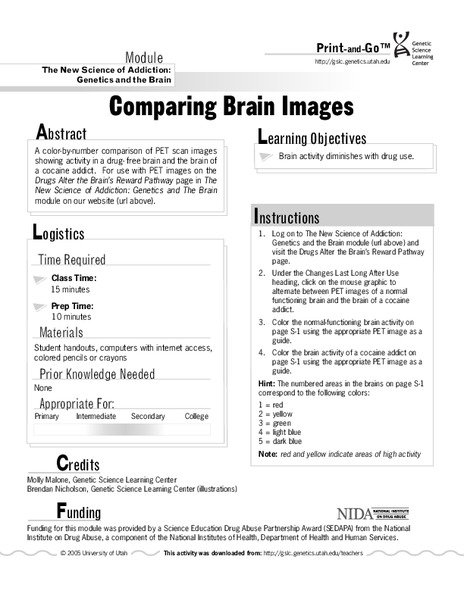Comparing Brain Images Interactive For 8th 12th Grade