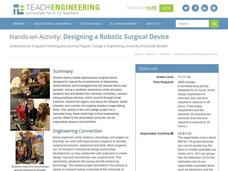 Designing a Robotic Surgical Device Activities & Project