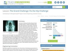 The Grand Challenge: Fix the Hip Challenge Lesson Plan