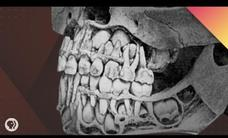 Where Do Teeth Come From? Video