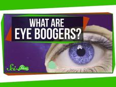 What Are Eye Boogers? Video